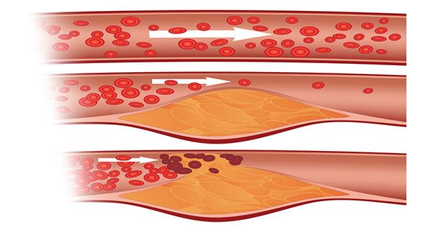 Nguyên nhân làm tăng hàm lượng cholesterol cao